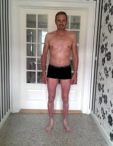 Lars efter behandling 1