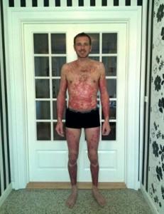 Lars før og efter psoreasis